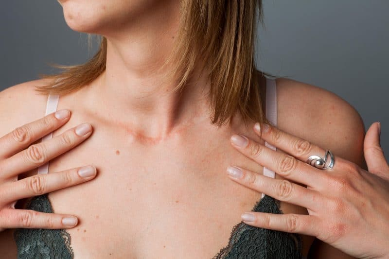 sarah howells the gluten free blogger thyroid surgery behind the scars 5